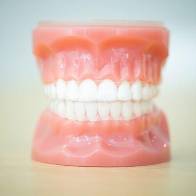 Tech-Typodonts-Kanning-Orthodontics-2020-Kansas-City-Missouri-Orthodontist-45-400x400 Kanning Orthodontics - Liberty Clarity Clear Aligners
