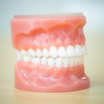 Tech-Typodonts-Kanning-Orthodontics-2020-Kansas-City-Missouri-Orthodontist-46-400x400 Kanning Orthodontics - Liberty Clarity Clear Aligners