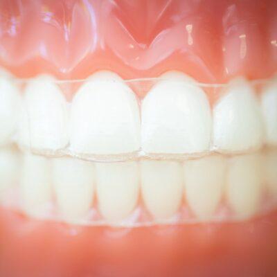 Tech-Typodonts-Kanning-Orthodontics-2020-Kansas-City-Missouri-Orthodontist-47-400x400 Kanning Orthodontics - Liberty Clarity Clear Aligners